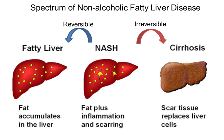 Fatty Liver WP.png